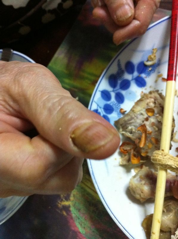 fungal-infection-on-fingers
